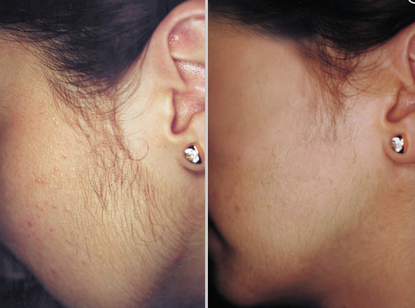 laser hair removal from the face