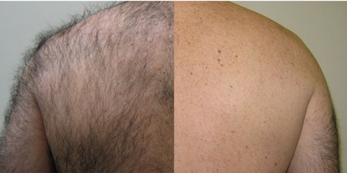 laser hair removal from the back