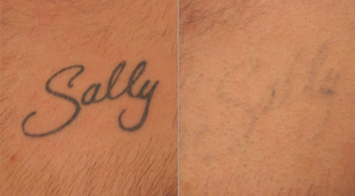Absolute beauty seaford tattoo removal for Absolute laser tattoo removal